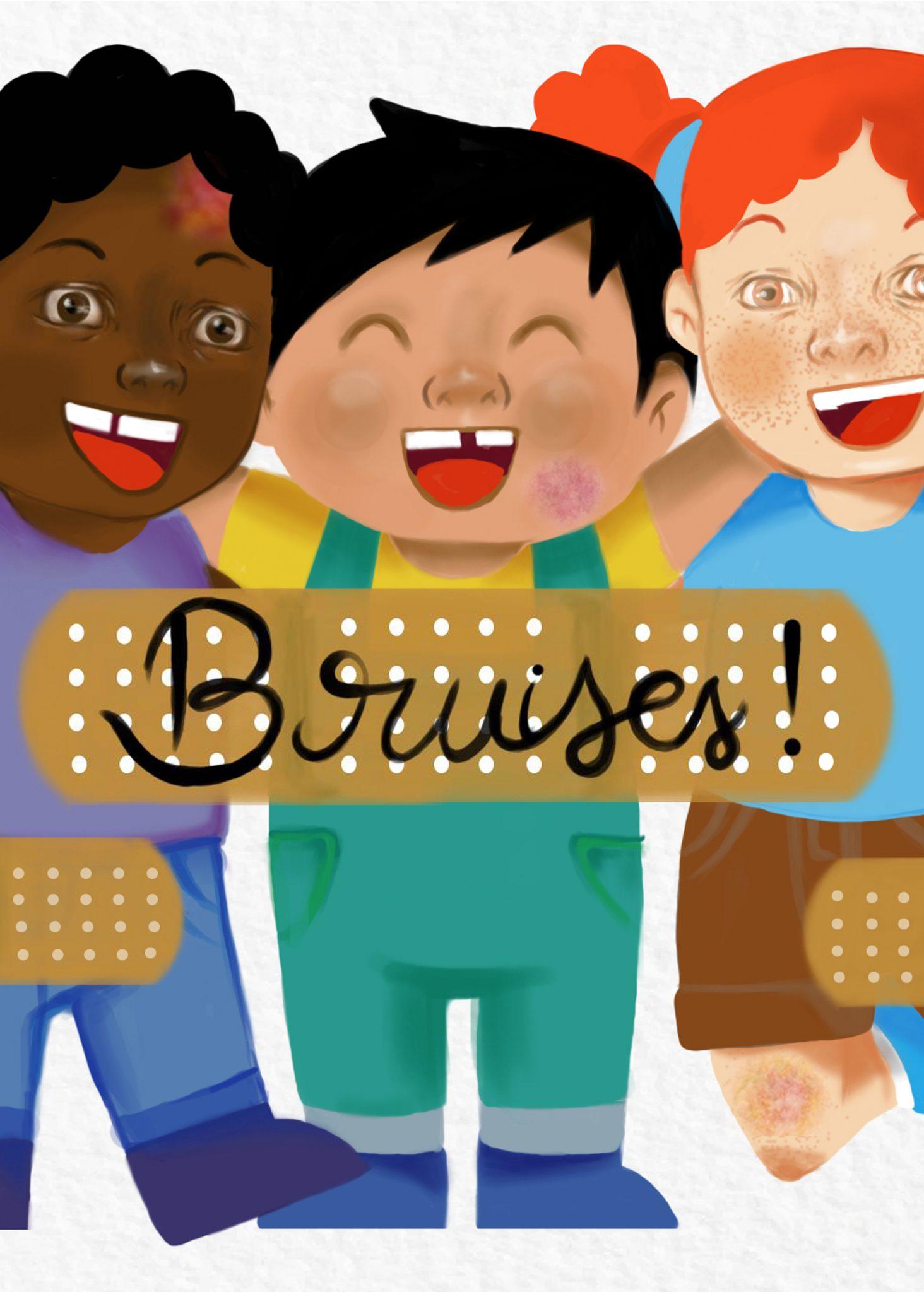 Bruises - Ebook Illustration Commission